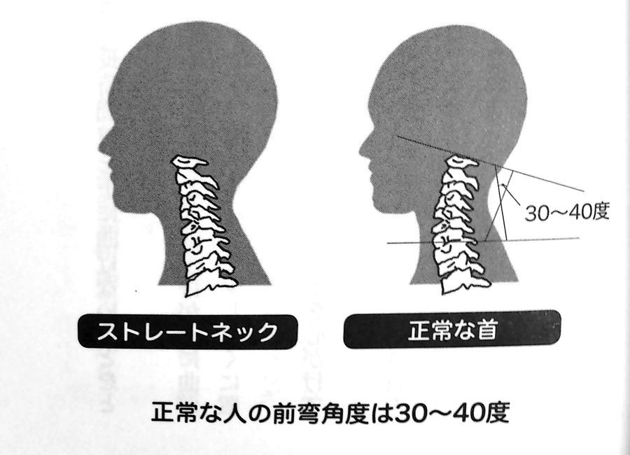 正常な人の前弯角度は30 40度 第3章P111