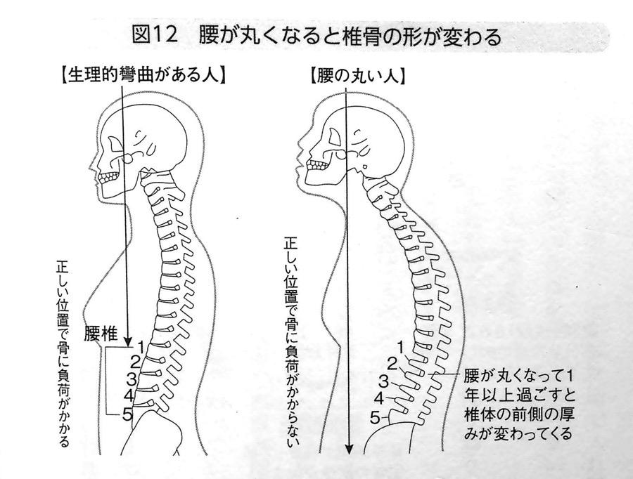 腰が丸いと椎骨の形が変わる 第2章P78
