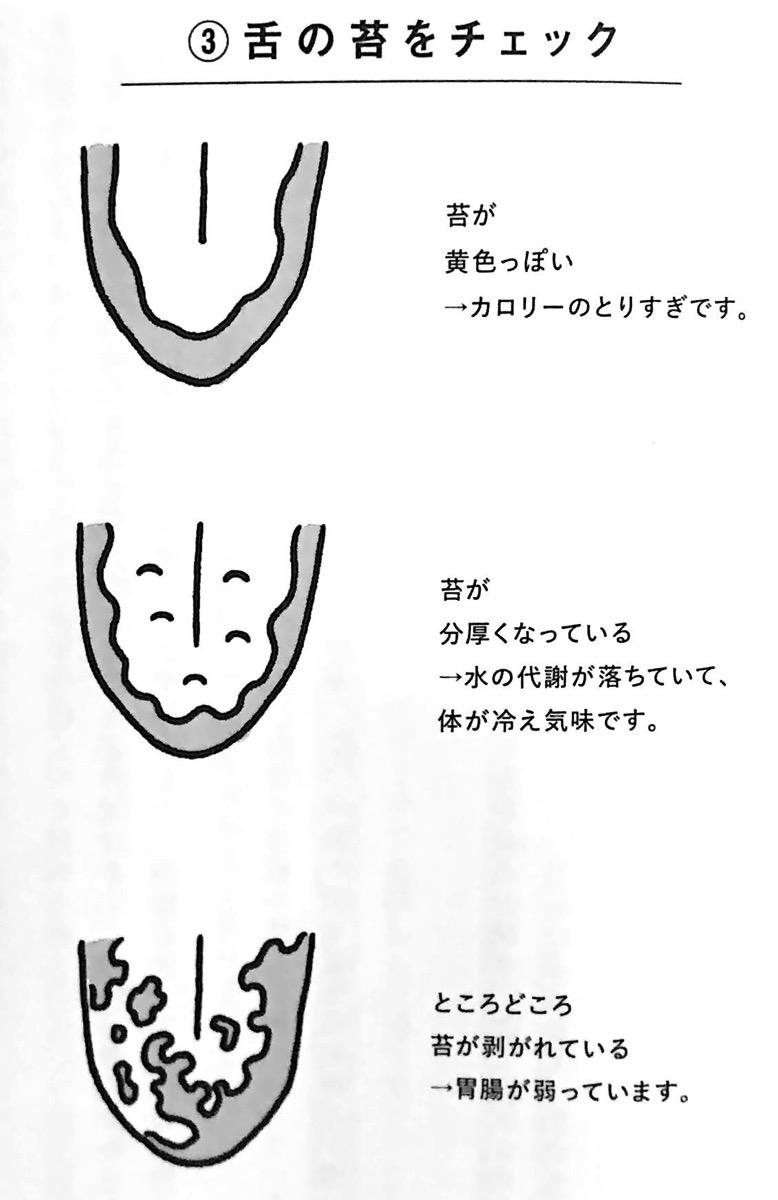 図2−3 舌の苔をチェック 寝てもとれない疲れ 第3章