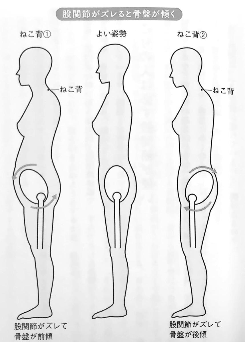 図2 股関節がズレると骨盤が傾く すべては股関節から 1章