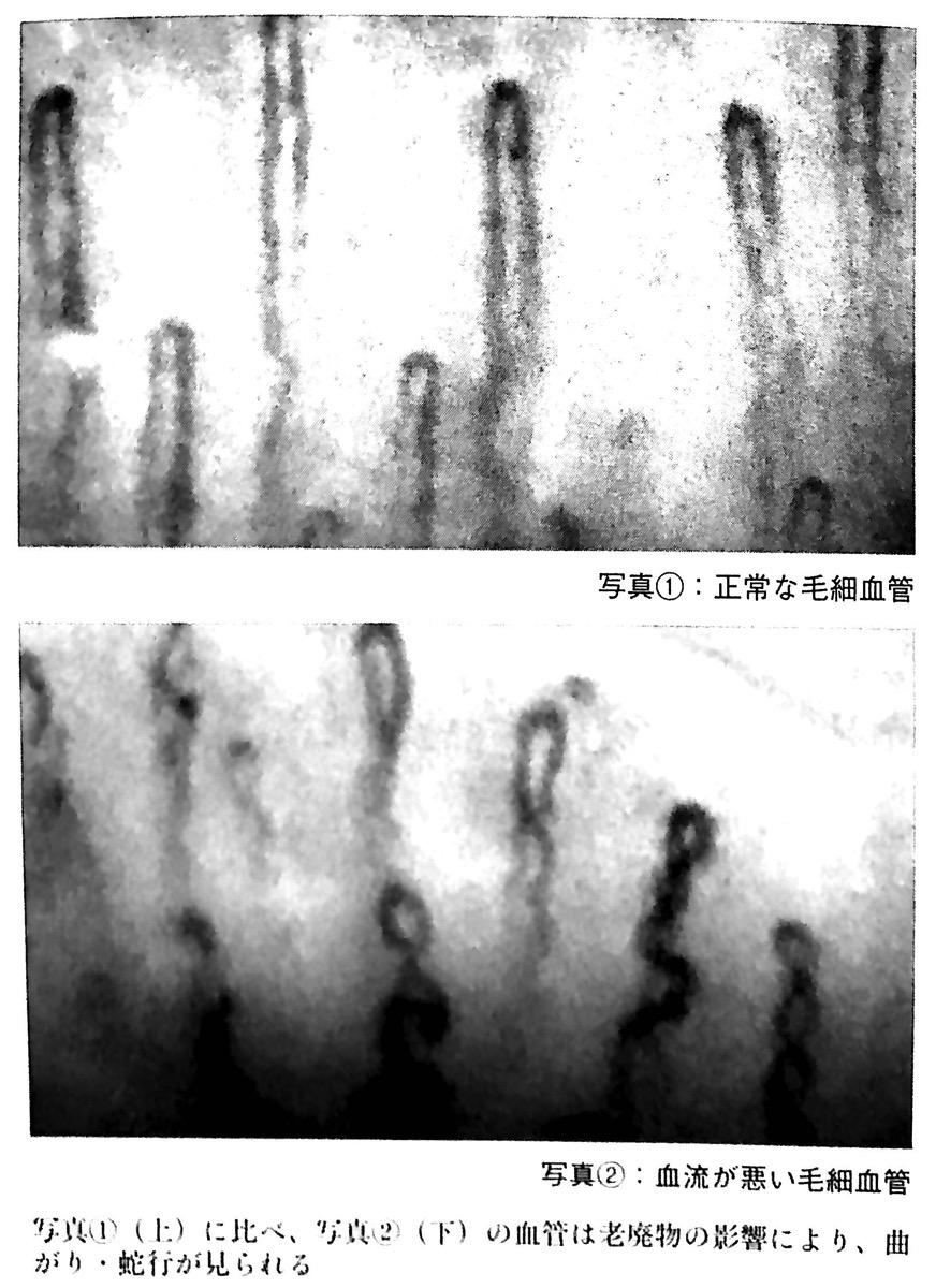 図2 正常な毛細血管 と 血流が悪い毛細血管 最高の疲労回復法 第2章
