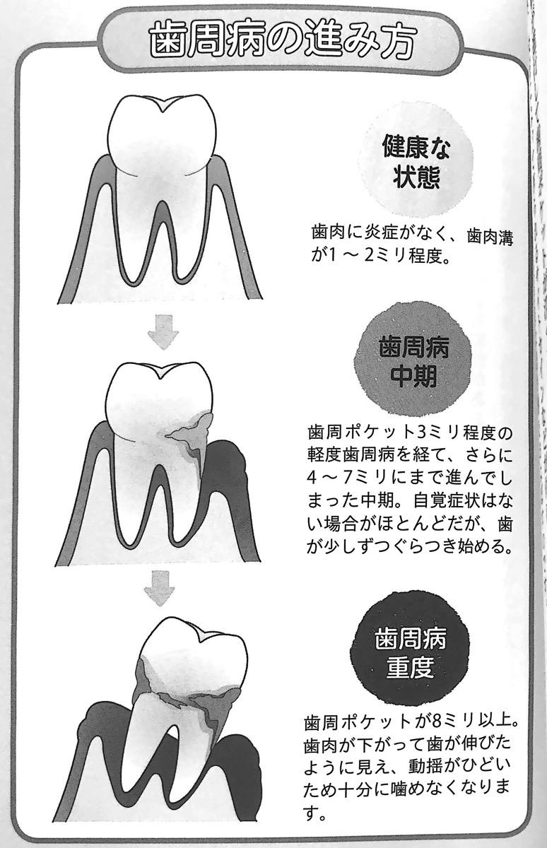 図4 歯周病の進み方 噛む力 が病気の9割 第4章