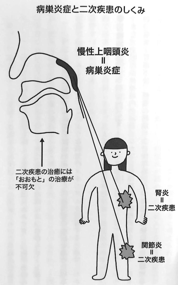 図5 病巣炎症と二次疾患のしくみ 慢性上咽頭炎を治しなさい 第4章