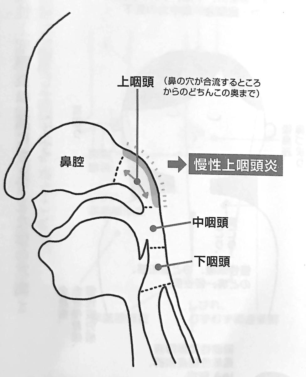 図1 上咽頭のある場所 慢性上咽頭炎を治しなさい はじめに