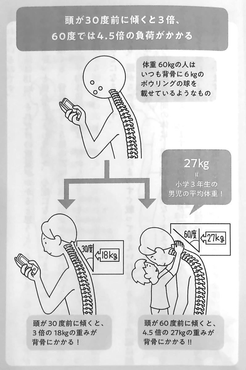 図1 頭が30度前に傾くと 首への負荷は3倍に 10秒胸椎のばし Part1